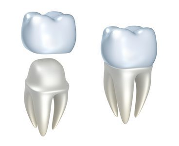 Same day dental crown